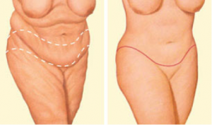 oklahoma-city-plastic-surgery-Body-1