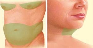 plastic-surgery-oklahoma-city-Pic-2