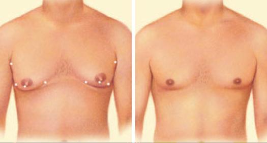 plastic-surgery-oklahoma-city-men-1