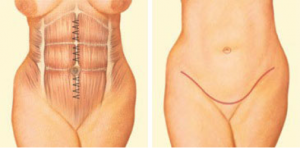 plastic-surgery-oklahoma-city-tummy-2