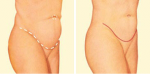 tummy-tuck-oklahoma-city-tummy-3