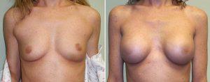 breast-implants-oklahoma-city