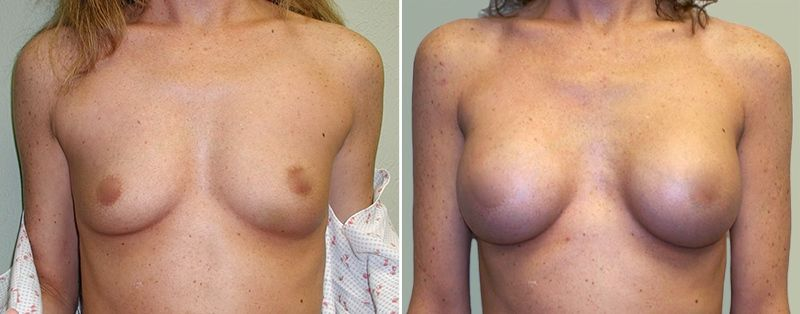 breast-implants-oklahoma-city