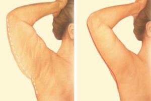 plastic-surgery-oklahoma-city-Arm-1