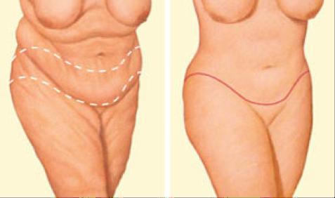 oklahoma-city-plastic-surgery-Body-1