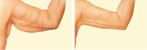 plastic-surgery-in-oklahoma-city-Body-3
