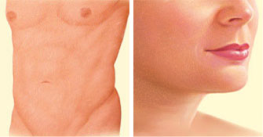 cosmetic-surgery-oklahoma-city-Pic-4