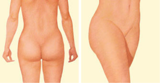 oklahoma-city-liposuction-Pic-3