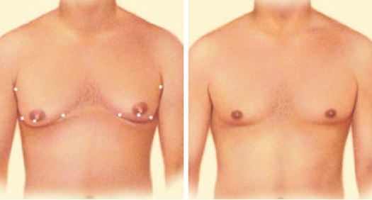 plastic-surgery-oklahoma-city-men-1
